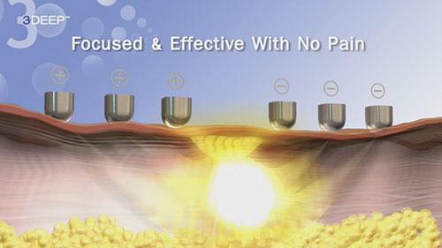 RF лифтинг – эффективный метод борьбы с возрастными изменениями кожи