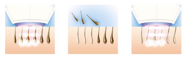Зуд головы и выпадение волос причины лечение