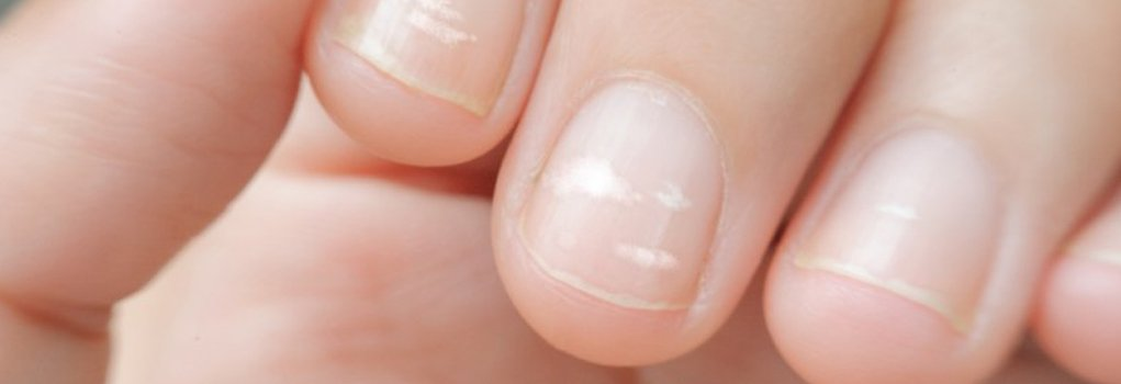 Что значит если на ногтях белые пятна